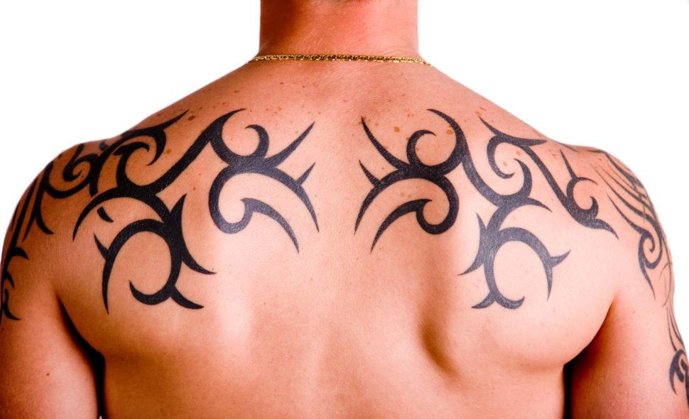 Ongewenste tatoeages