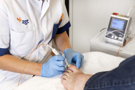 Schimmelnagel laserbehandeling